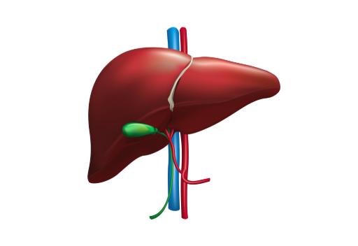 NASH: La Nueva Epidemia del Hígado